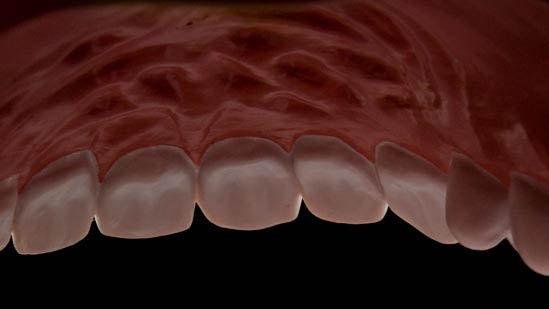 080126_torture_teeth_002-roof.jpg