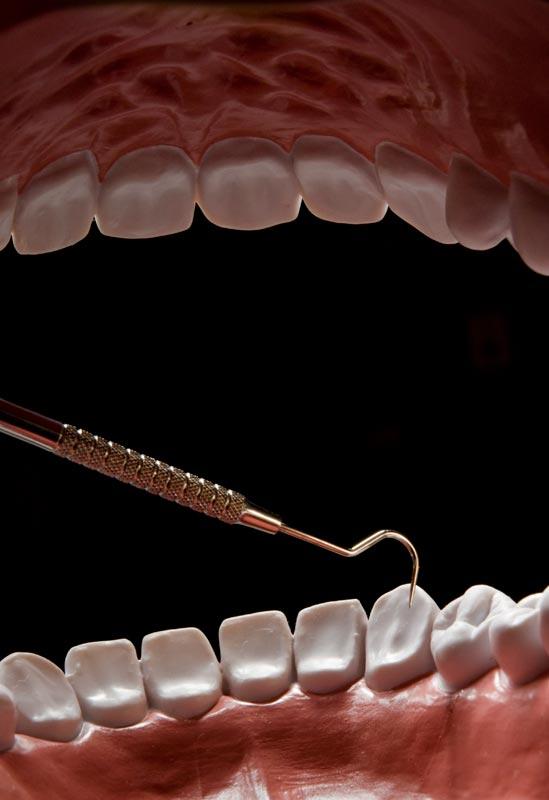 080126_torture_teeth_002.jpg
