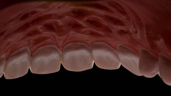 080126_torture_teeth_002-roof.jpg